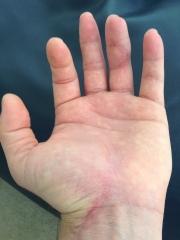 ben hand photo